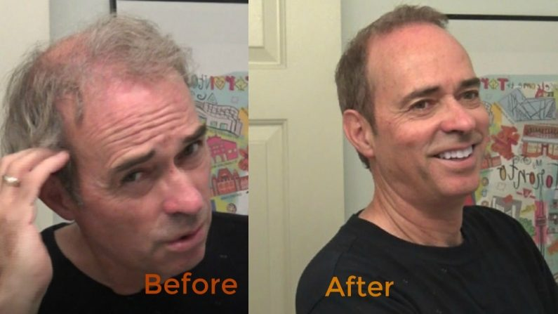 Bill's 1st Video for Men's Thinning, Grey Hair Color & Style