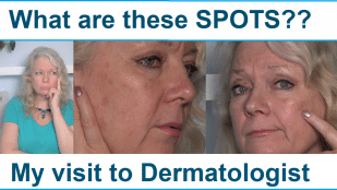 What are these Spots on my Face?… Seeing a Dermatologist!